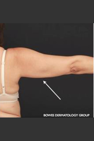After Photo for CoolSculpting on Woman's Upper Arm   - Leyda Elizabeth Bowes, M.D. - ZALEA Before & After