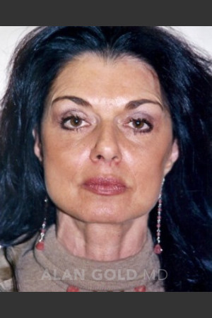 After Photo for Rhytidectomy (Facelift) 1884   - Alan Gold MD - ZALEA Before & After