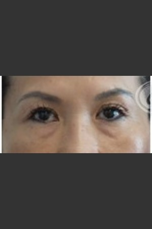 Before Photo for Undereye Filler   - Lawrence Bass MD - ZALEA Before & After
