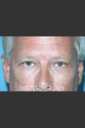 After Photo for Periorbital Rejevenation - Patient 5   - Steven Fagien, MD - ZALEA Before & After
