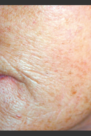 Before Photo for Quanta Eterna IPL Treatment #77   - Lawrence Bass MD - ZALEA Before & After