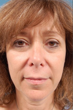 Before Photo for Facelift Surgery   - Thomas A. Mustoe, MD, FACS - ZALEA Before & After