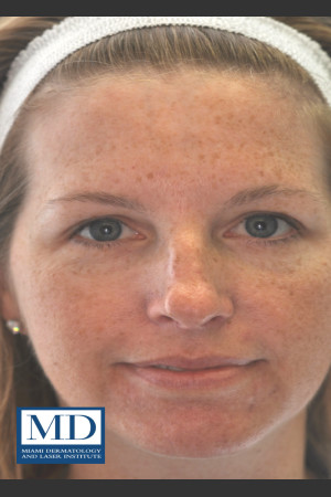 Before Photo for IPL Brown Spots Treatment 109   - Jill S. Waibel, MD - ZALEA Before & After