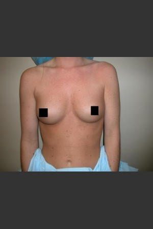Before Photo for Breast Augmentation   - Lawrence Bass MD - ZALEA Before & After