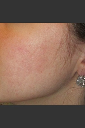 After Photo for Infini Acne Scar Treatment #11   - ZALEA Before & After