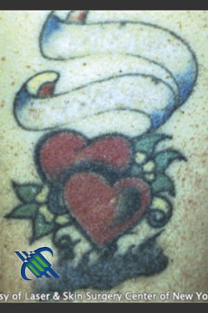 After Photo for Treatment of Arm Tattoo - Roy G. Geronemus, M.D. - Prejuvenation