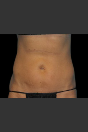 After Photo for Body Contouring Treatment #123 -  - Prejuvenation