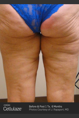 After Photo for Cellulaze Cellulite Treatment   - ZALEA Before & After