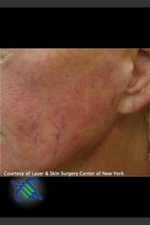 Before Photo for Treatment of Facial Blood Vessels   - Roy G. Geronemus, M.D. - ZALEA Before & After
