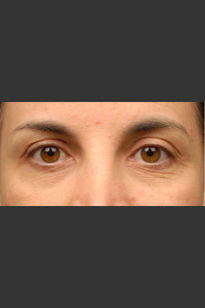 Before Photo for 3DEEP Eye Wrinkle Reduction   - Lawrence Bass MD - ZALEA Before & After