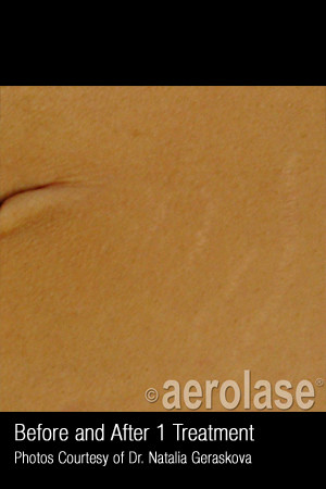 After Photo for Treatment of Striae #345   - ZALEA Before & After