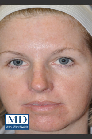 After Photo for IPL Brown Spots Treatment 109   - Jill S. Waibel, MD - ZALEA Before & After