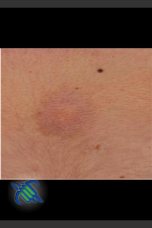 After Photo for Treatment of Sun Tattoo   - Roy G. Geronemus, M.D. - ZALEA Before & After