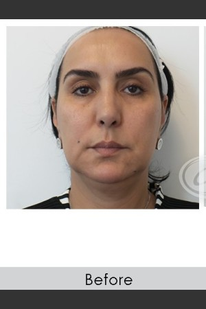 Before Photo for Liquid Face Lift   - Annie Chiu, MD - ZALEA Before & After
