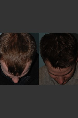 After Photo for Neograft Hair Transplant   - Mark B. Taylor, M.D. - ZALEA Before & After