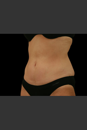 After Photo for Body Contouring Treatment #111 -  - Prejuvenation