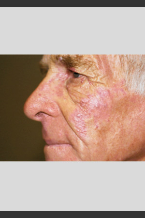 After Photo for Vbeam Laser Treatment of Port Wine Stain   - ZALEA Before & After