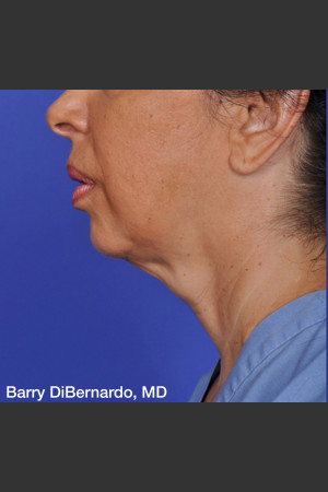 Before Photo for ThermiTight Treatment - Barry E. DiBernardo, MD, FACS - Prejuvenation