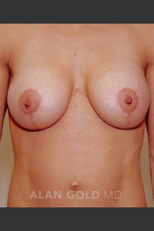 After Photo for Mastopexy and Augmentation 515   - Alan Gold MD - ZALEA Before & After