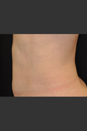 After Photo for Body Contouring Treatment #122 -  - Prejuvenation
