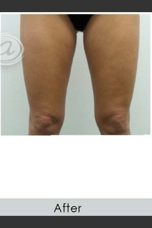 After Photo for Vanquish for Thighs - Annie Chiu, MD - Prejuvenation