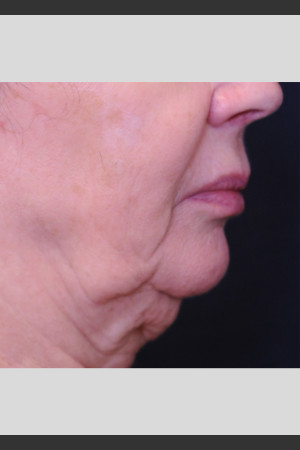 Before Photo for Profound Lift Treatment of Jawline   - ZALEA Before & After