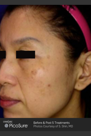 Before Photo for Treatment of Pigmented Lesions -  - Prejuvenation