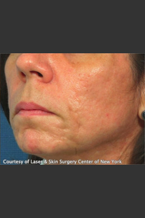 After Photo for Treatment of Facial  Acne Scars -  - Prejuvenation