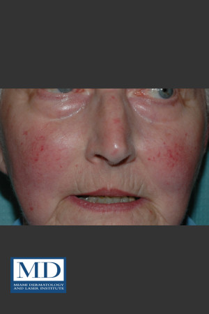 Before Photo for Rosacea Treatment 101 - Jill S. Waibel, MD - Prejuvenation