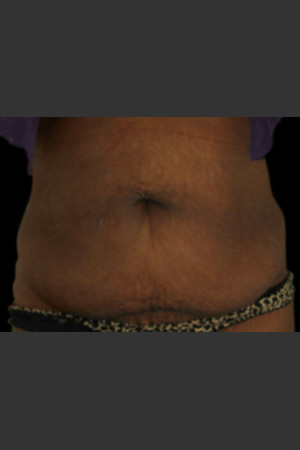 After Photo for Body Contouring Treatment #115   - Lawrence Bass MD - ZALEA Before & After