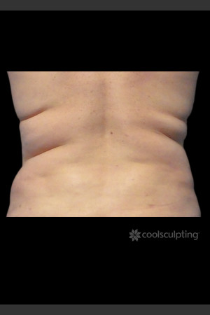 Before Photo for CoolSculpting on Woman's Love Handles   - Lawrence Bass MD - ZALEA Before & After