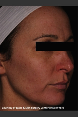 After Photo for Facial Skin Rejuvenation with Clear and Brillant Permea   - Lawrence Bass MD - ZALEA Before & After