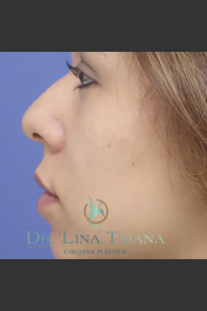 Before Photo for Rhinoplasty   - Lina Triana, MD - ZALEA Before & After