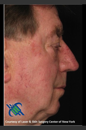 After Photo for Male Full Face Fraxel Treament   - Roy G. Geronemus, M.D. - ZALEA Before & After