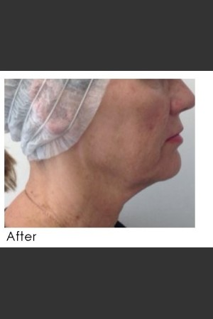 After Photo for Infini Treatment for Neck Rejuvenation   - Annie Chiu, MD - ZALEA Before & After