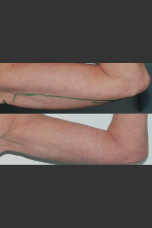 After Photo for Submental and arm localized liposuction   - Mark B. Taylor, M.D. - ZALEA Before & After