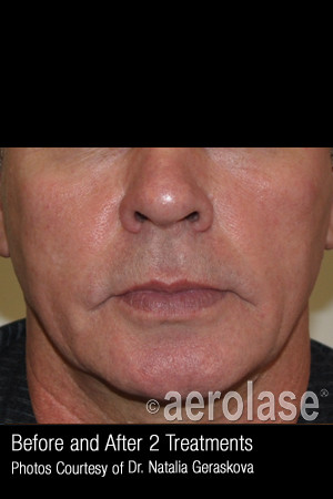 After Photo for Treatment of Facial Blood Vessels #324   - ZALEA Before & After