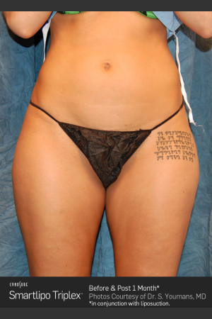 Before Photo for Smartlipo Laser Lipo of the Thighs   - ZALEA Before & After
