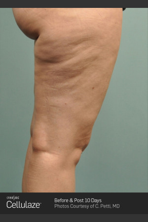 Before Photo for Cellulaze Cellulite Treatment of the Thighs   - ZALEA Before & After
