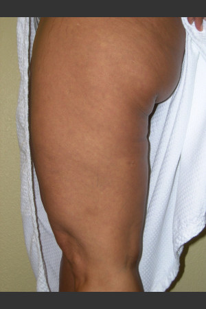 After Photo for 3DEEP Thigh Cellulite Reduction   - ZALEA Before & After