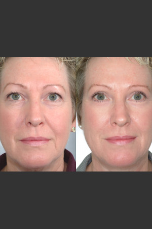 Before Photo for Two women with Laser Eyelid Blepharoplasty   - Mark B. Taylor, M.D. - ZALEA Before & After