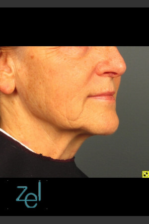 After Photo for Lower Face Ultherapy & Dermal Fillers - Brian D. Zelickson, M.D. - Prejuvenation