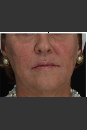 After Photo for Immediate Lifting of Corners of the Mouth after Juvederm Ultra injection (effect is immediately after injection)   - Leyda Elizabeth Bowes, M.D. - ZALEA Before & After