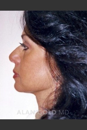 After Photo for Rhytidectomy (Facelift) 1884 Side View   - Alan Gold MD - ZALEA Before & After