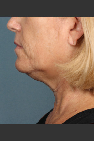 Before Photo for Kybella Treatment 54 Year Old Female   - ZALEA Before & After