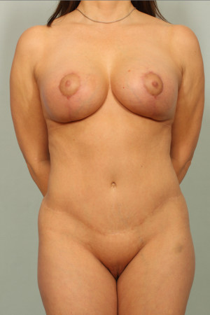 After Photo for Breast Lift   - El Paso Cosmetic Surgery - ZALEA Before & After
