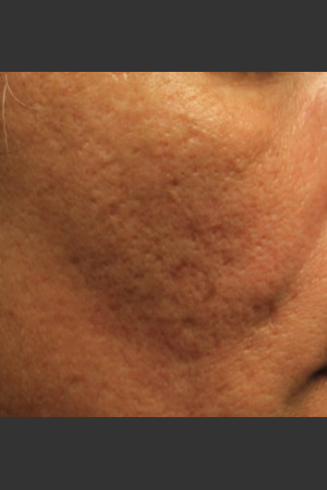 Before Photo for Infini Acne Scar Treatment #12   - ZALEA Before & After