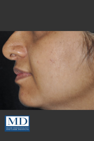 After Photo for Post Inflammatory Hyperpigmentation 120   - Jill S. Waibel, MD - ZALEA Before & After