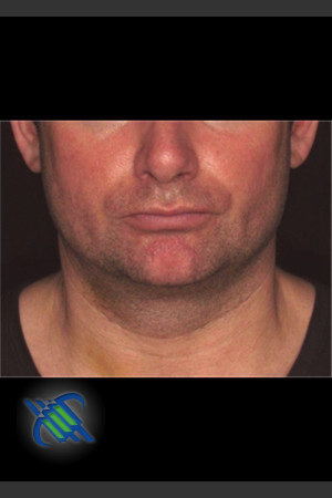 After Photo for Treatment of Male Neck with Laser Liposuction   - Roy G. Geronemus, M.D. - ZALEA Before & After