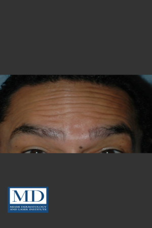 Before Photo for Neurotoxin Treatment of Forehead 131   - Jill S. Waibel, MD - ZALEA Before & After